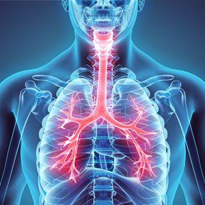 Causas de hipertensión arterial pulmonar