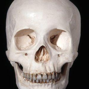 Skull Radio One :1