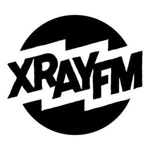 XRAY In The Morning, November 18th 2016