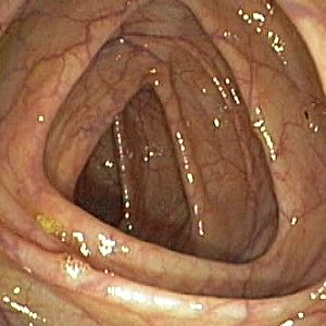 Colonoscopy Patient Education-Liver Specialists of Texas