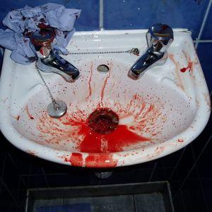 Nose Bleeder