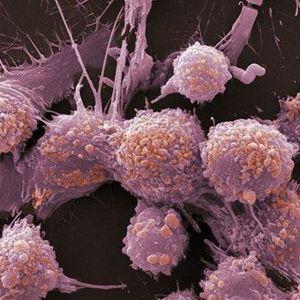Vēzi var ārstēt. Galvenais - veic regulāras un savlaicīgas veselības pārbaudes