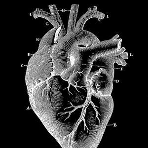 Enlarged Heart Radio #4