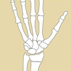 Fractures & Breaks