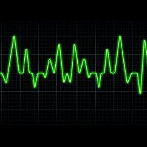 Electrocardiobreaks