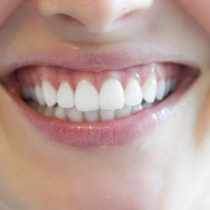 Everything you wanted to know about teeth but were too afraid to ask