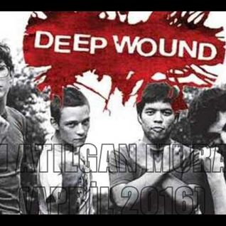 DJ ATILGAN MURAT - DEEP WOUND (APRİL 2016)