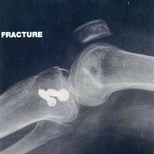 Fracture_Insane Pinguinz
