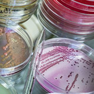 AMR (antimicrobial resistance)