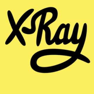 X-ray - Tom Cullen - (4/4/15)