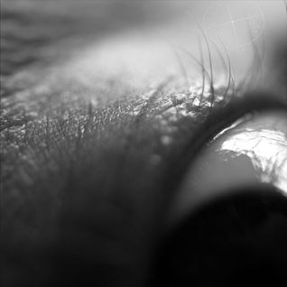Glass eye (2011-05-15)