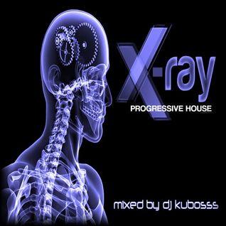 X-ray progressive house