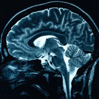 Asit - Defragmentacja Myśli