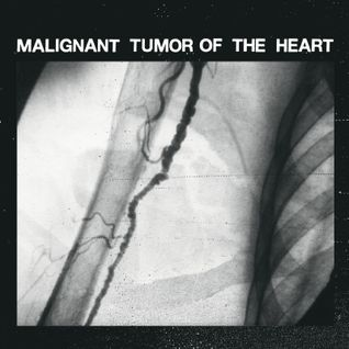 Malignant Tumor Of The Heart