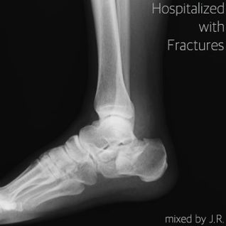 Hospitarized with Fractures