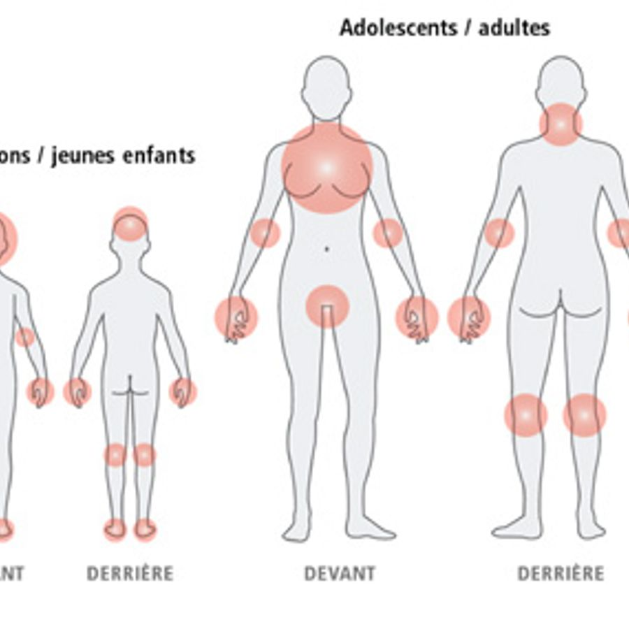 1 guidance atopic eczema in under 12s diagnosis and - 954×880